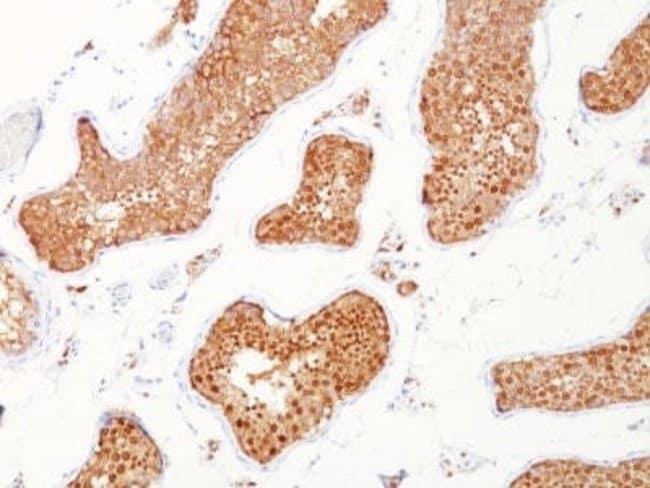 Inhibin alpha Mouse anti-Human, Clone: INHA/1168, Novus Biologicals:Antibodies:Primary
