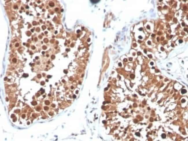 Inhibin alpha Mouse anti-Human, Clone: INHA/4265, Novus Biologicals:Antibodies:Primary