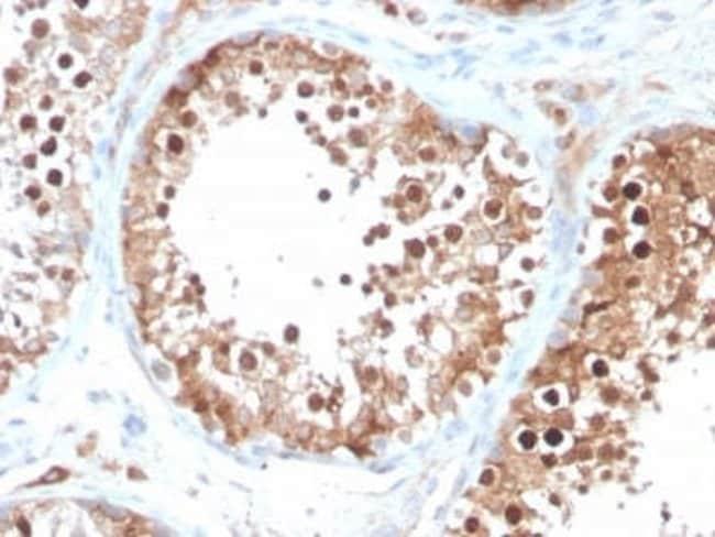 Inhibin alpha Mouse anti-Human, Clone: INHA/4266, Novus Biologicals:Antibodies:Primary