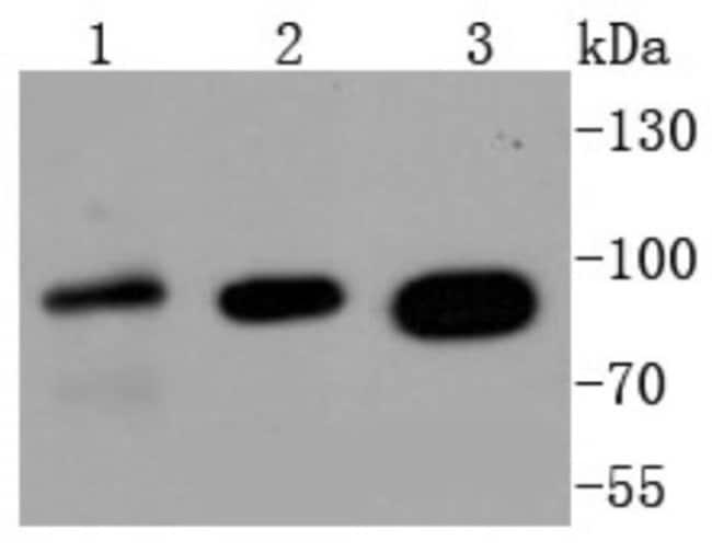 Insulin R/CD220 Rabbit anti-Human, Mouse, Rat, Clone: SN20-13, Novus Biologicals