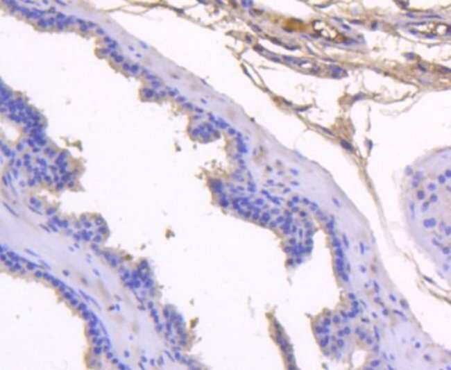 Kallikrein 3/PSA Rabbit anti-Human, Mouse, Clone: SD07-45, Novus Biologicals