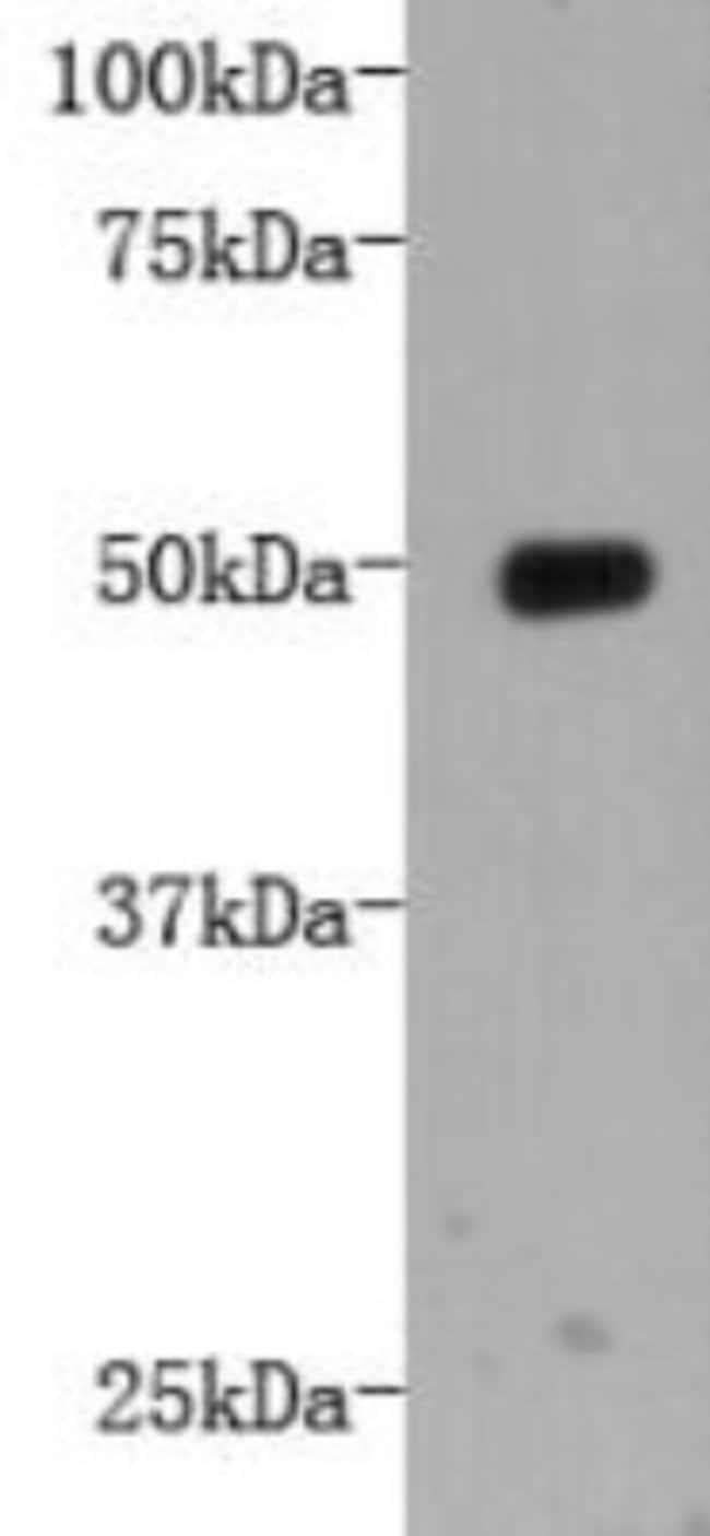 LRP-1 Mouse anti-Human, Clone: A4-F5, Novus Biologicals 100μL:Antibodies