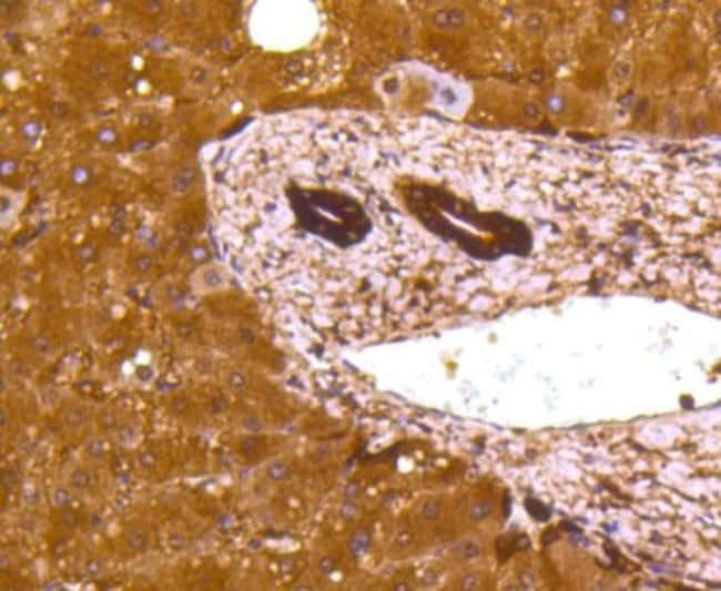 LactateDehydrogenaseA/LDHA Rabbit anti-Human, Clone: SU39-06, Novus Biologicals