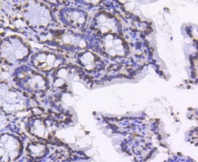 LaminB1 Rabbit anti-Human, Clone: SI17-06, Novus Biologicals 100µL