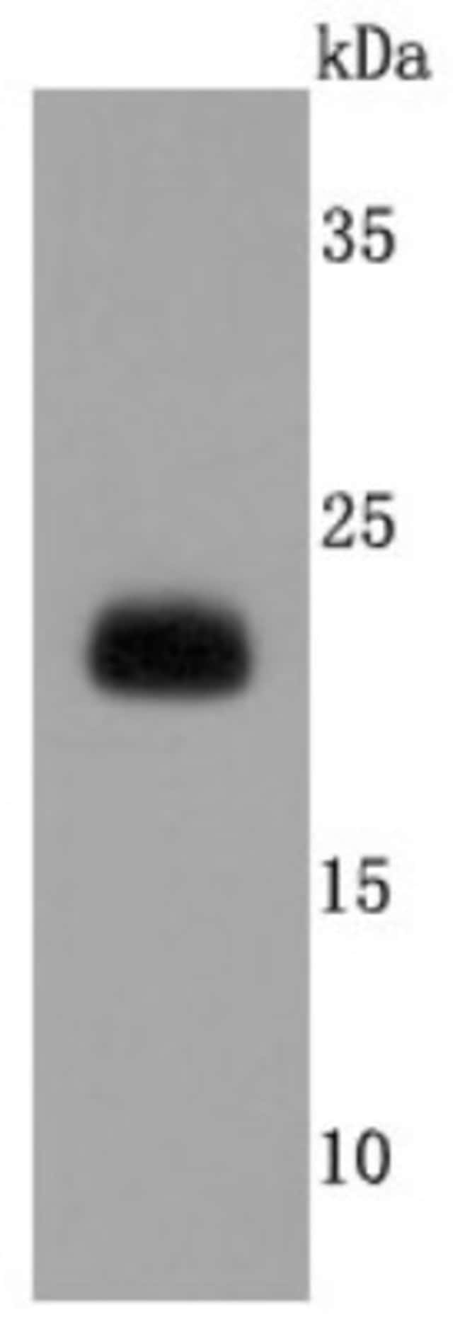 Lipocalin-2/NGAL Rabbit anti-Human, Clone: JM10-67, Novus Biologicals 100µL
