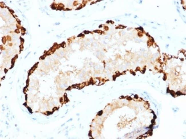MAGEA4, Mouse anti-Human, Clone: CPTC-MAGEA4-1, Novus Biologicals:Antibodies:Primary
