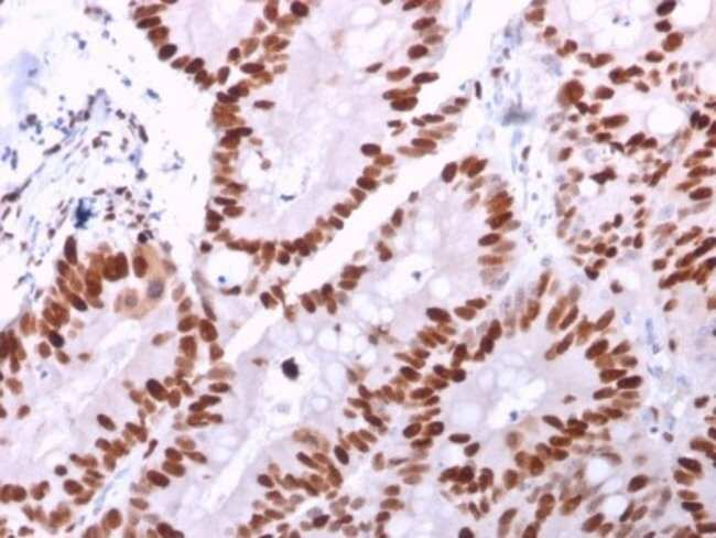 MCM6, Mouse anti-Human, Clone: MCM6/2999, Novus Biologicals 20 ug; Unconjugated