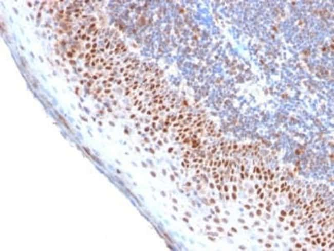 MCM7 Rabbit anti-Human, Clone: MCM7/2756R, Novus Biologicals:Antibodies:Primary