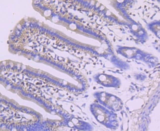 MEF2A Rabbit anti-Human, Clone: JA33-04, Novus Biologicals 100µL