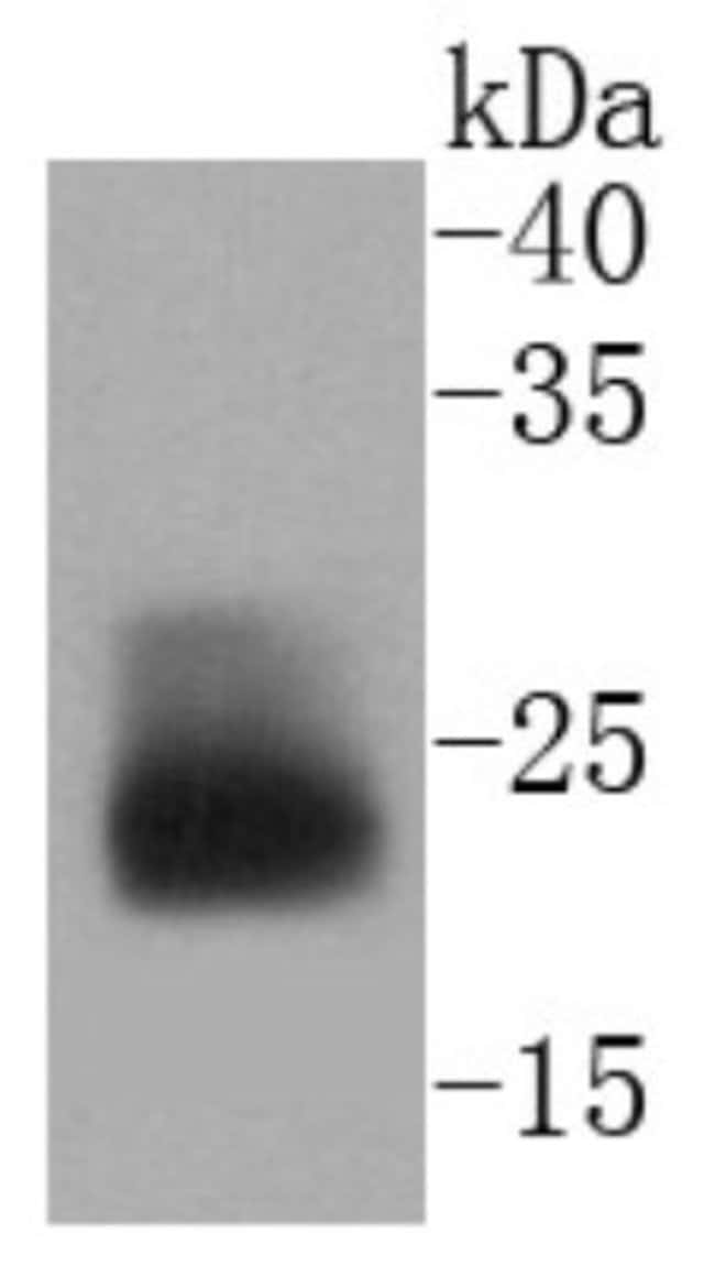 MUC-1 Rabbit anti-Human, Clone: SN06-80, Novus Biologicals 100μL:Antibodies