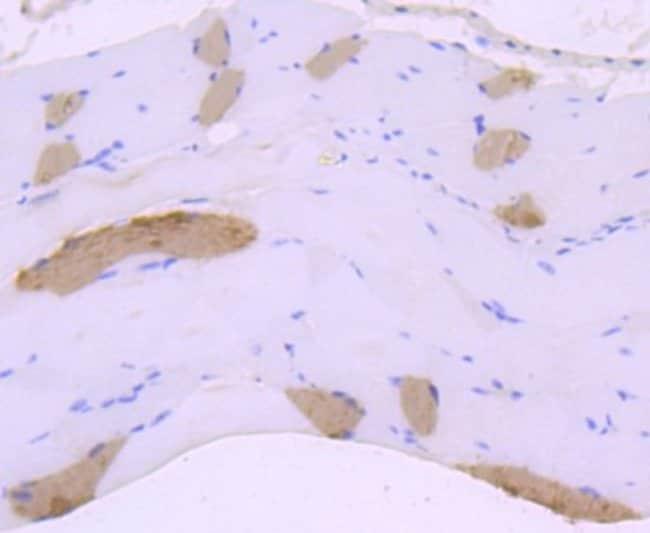 MYH6 Rabbit anti-Human, Clone: JF097-7, Novus Biologicals 100µL