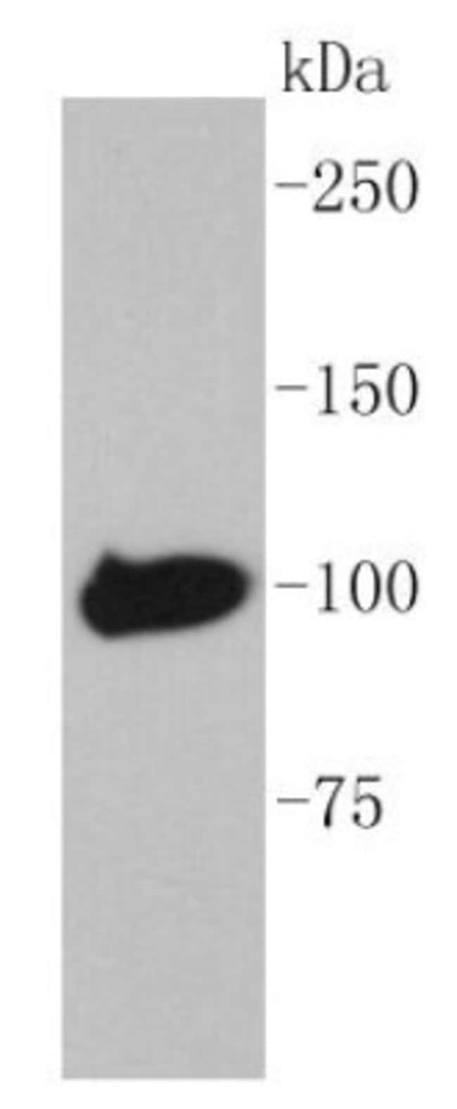 MaltoseBindingProtein Rabbit anti-E. coli, Clone: SR41-04, Novus Biologicals