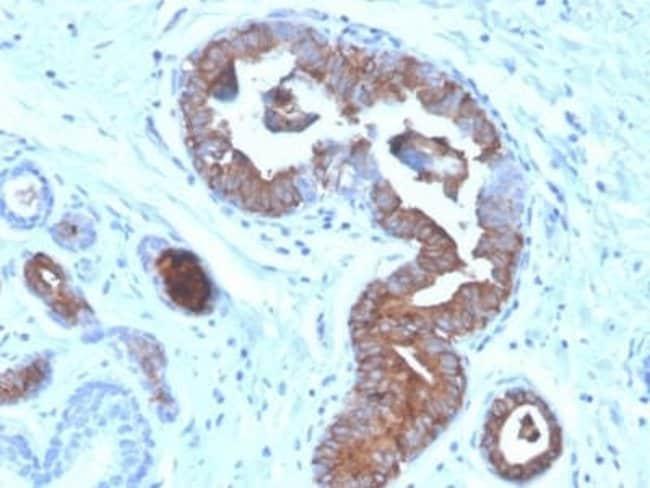 Mammaglobin A Mouse anti-Human, Clone: MGB/4056, Novus Biologicals:Antibodies:Primary