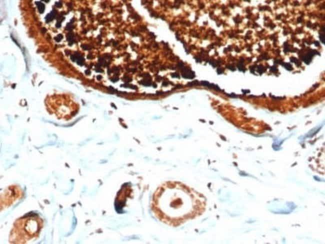 Mammaglobin A Rabbit anti-Human, Clone: MGB/4812R, Novus Biologicals:Antibodies:Primary
