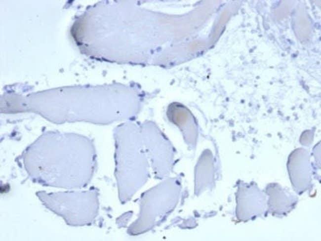 Mammaglobin A Mouse anti-Human, Clone: rMGB/6619, Novus Biologicals:Antibodies:Primary