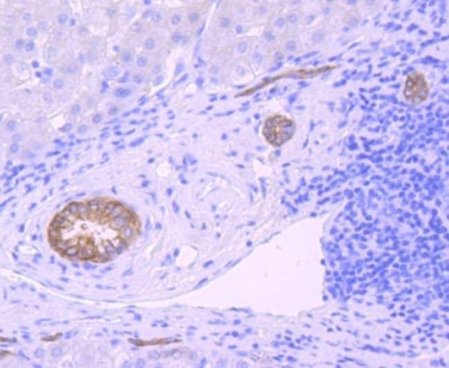 Midkine Rabbit anti-Human, Clone: JF096-5, Novus Biologicals 100µL