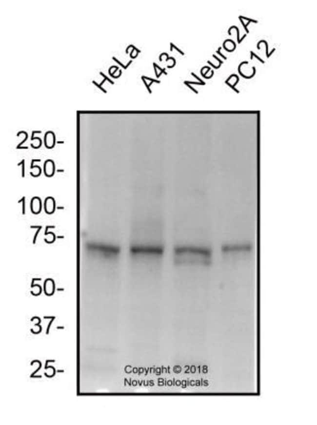 Mitofusin2 Rabbit anti-Human, Polyclonal, Novus Biologicals 0.025mg