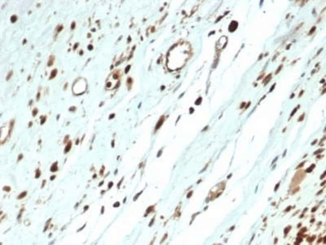 MyoD Rabbit anti-Human, Clone: MYOD1/3418R, Novus Biologicals:Antibodies:Primary