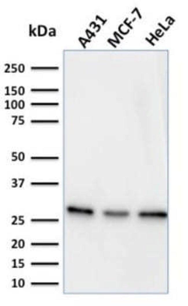 Myofibroblast Marker Mouse anti-Human, Clone: PR 2D3, Novus Biologicals:Antibodies:Primary