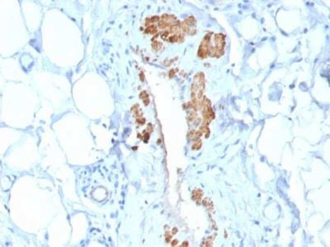 Myosin heavy chain 11 Rabbit anti-Human, Rat, Porcine, Bovine, Canine,