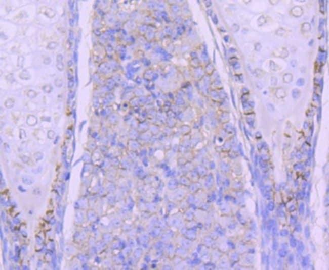 N-Cadherin Rabbit anti-Human, Clone: SY02-46, Novus Biologicals 100µL