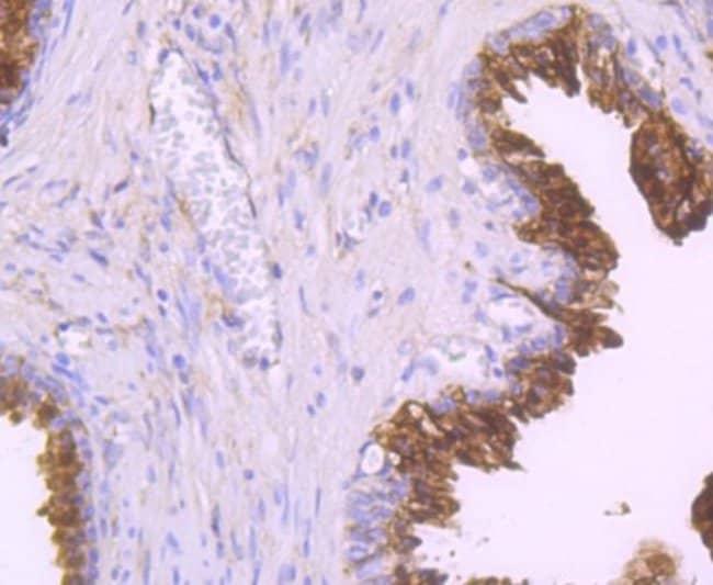NDRG1 Rabbit anti-Human, Clone: JM32-02, Novus Biologicals 100µL