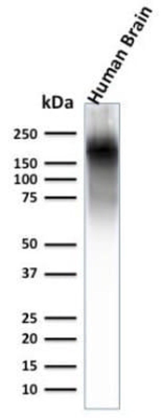 NF-H Rabbit anti-Human, Mouse, Rat, Porcine, Chicken, Clone: NEFL.H/2324R,