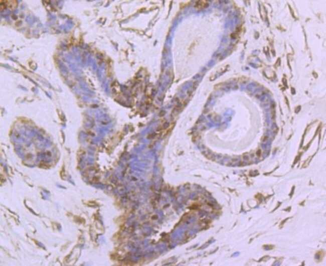 NGFI-Balpha/Nur77/NR4A1 Rabbit anti-Human, Clone: JM59-11, Novus Biologicals