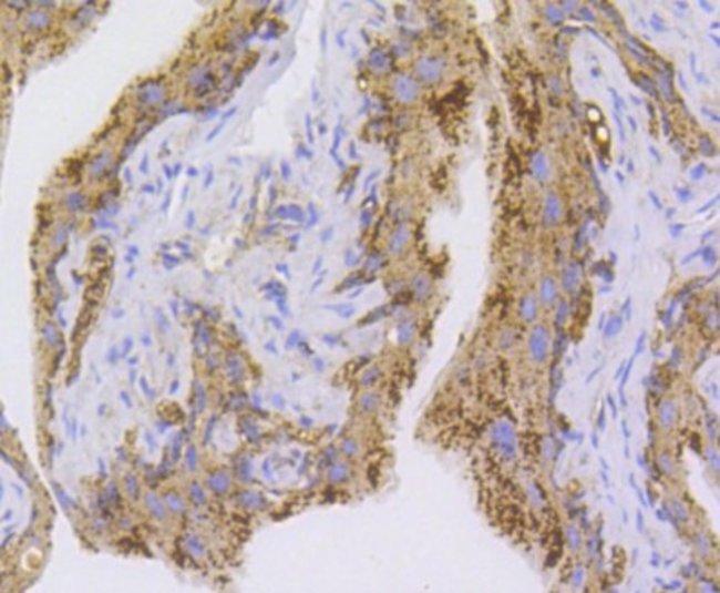 NLRP3/NALP3 Rabbit anti-Human, Clone: SC06-23, Novus Biologicals 100µL
