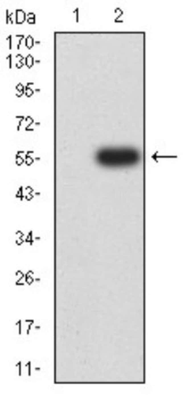 Nicotinic Acetylcholine R alpha 4/CHRNA4 Mouse anti-Human, Clone: 7B4H1,