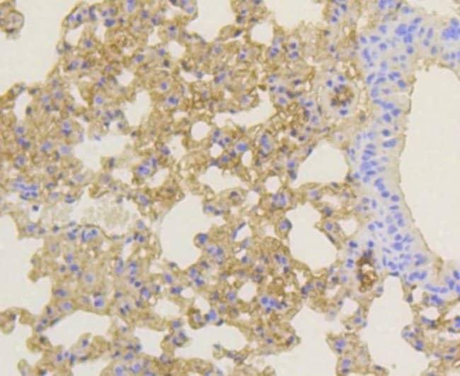 Notch1b Rabbit anti-Human, Clone: SJ205, Novus Biologicals 100µL