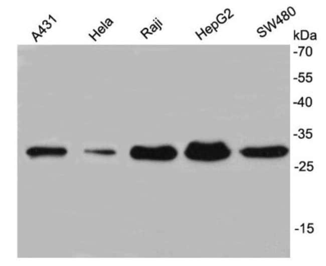 NusA Mouse anti-Bacteria, Clone: A6-E7, Novus Biologicals 100μL:Antibodies