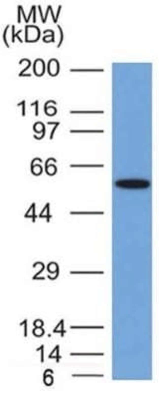 Occludin Mouse anti-Human, Clone: OCLN/2181, Novus Biologicals:Antibodies:Primary