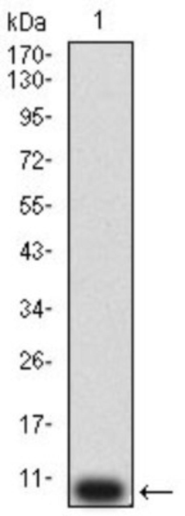P2Y12/P2RY12 Mouse anti-Human, Clone: 1C2A9, Novus Biologicals 0.1 ml;