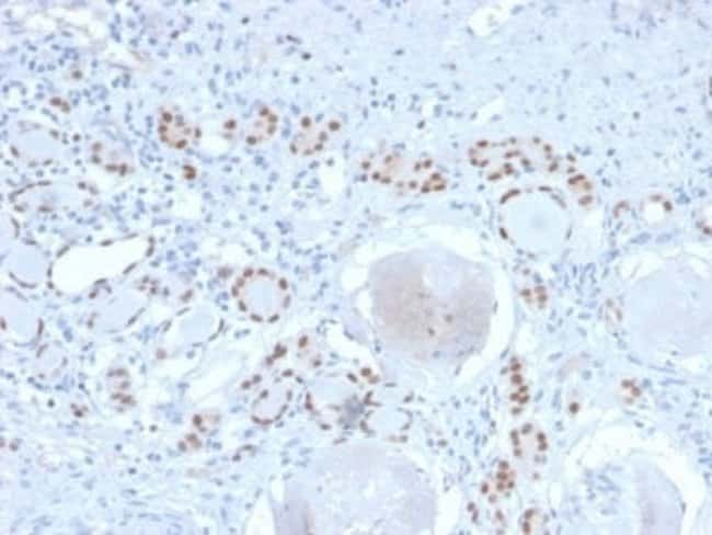 PAX8 Rabbit anti-Human, Clone: PAX8/2774R, Novus Biologicals:Antibodies:Primary