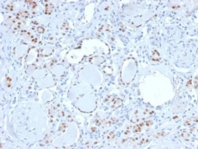 PAX8 Rabbit anti-Human, Clone: PAX8/3688R, Novus Biologicals:Antibodies:Primary