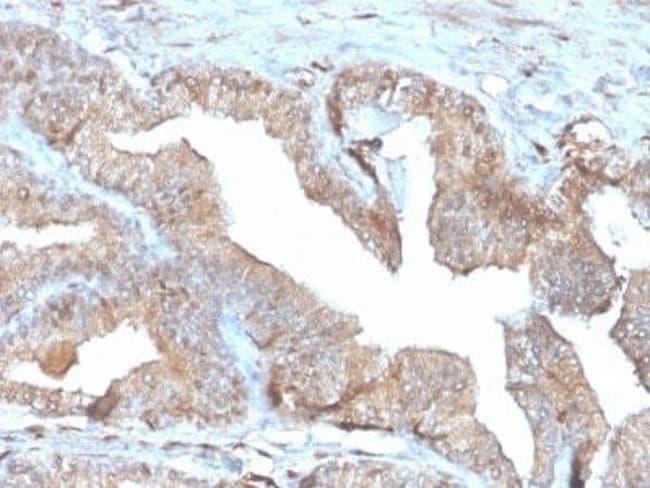 PD-ECGF/Thymidine Phosphorylase Mouse anti-Human, Mouse, Rat, Clone: rTYMP/3444,