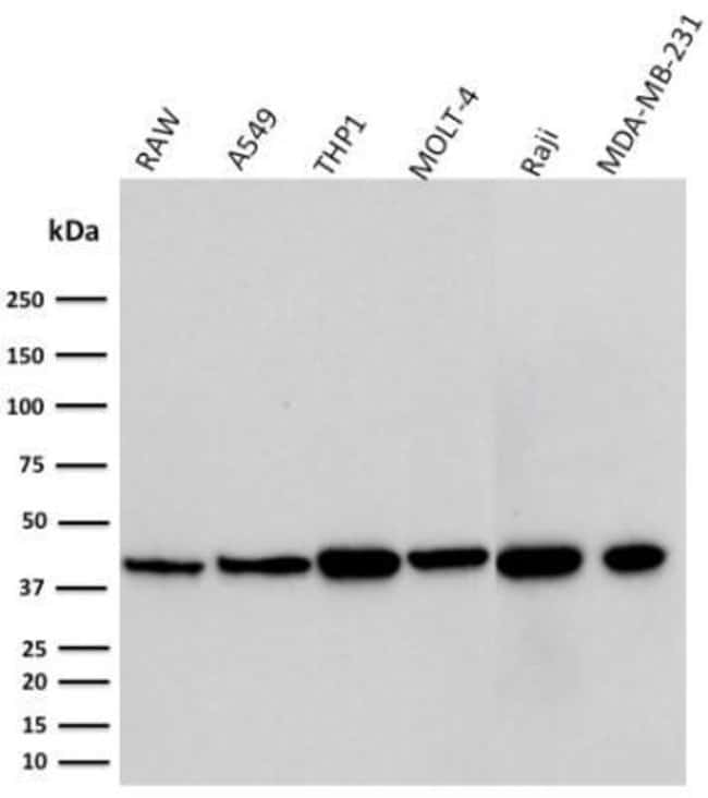 PD-L1, Mouse anti-Human,Mouse, Clone: PDL1/2746, Novus Biologicals:Antibodies:Primary