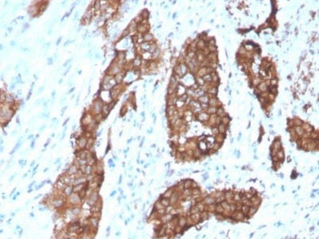 PDLIM1 Mouse anti-Human, Clone: CPTC-PDLIM1-1, Novus Biologicals:Antibodies:Primary