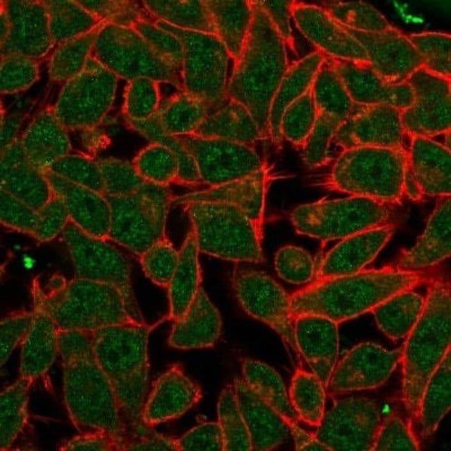 PDX-1/IPF1 Mouse anti-Human, Clone: PCRP-PDX1-2C11, Novus Biologicals:Antibodies:Primary