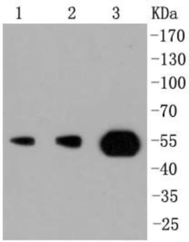 PIK3R3 Rabbit anti-Human, Clone: SR44-06, Novus Biologicals 100μL