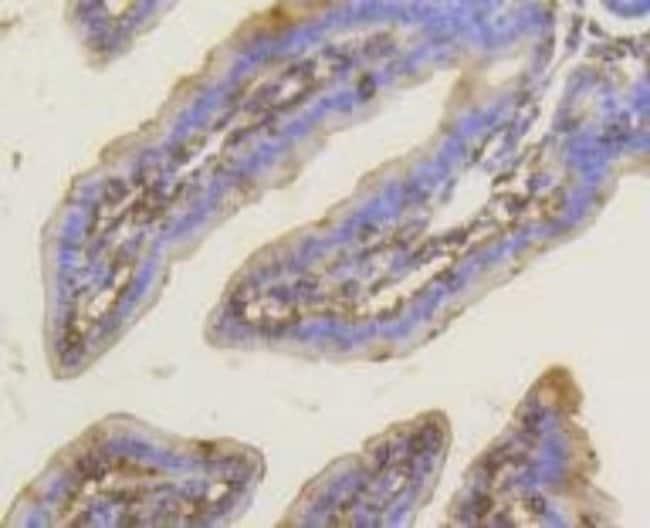 PKCalpha Rabbit anti-Human, Clone: SU31-08, Novus Biologicals 100µL