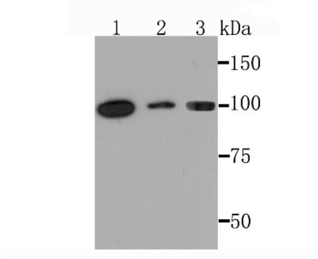 PKCmu Rabbit anti-Human, Clone: JM30-17, Novus Biologicals 100μL:Antibodies