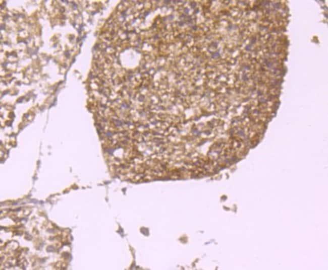PLGF Rabbit anti-Human, Clone: JA63-15, Novus Biologicals 100μL:Antibodies