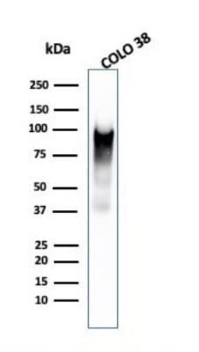 PMEL17/SILV Mouse anti-Human, Clone: PMEL/2038, Novus Biologicals:Antibodies:Primary
