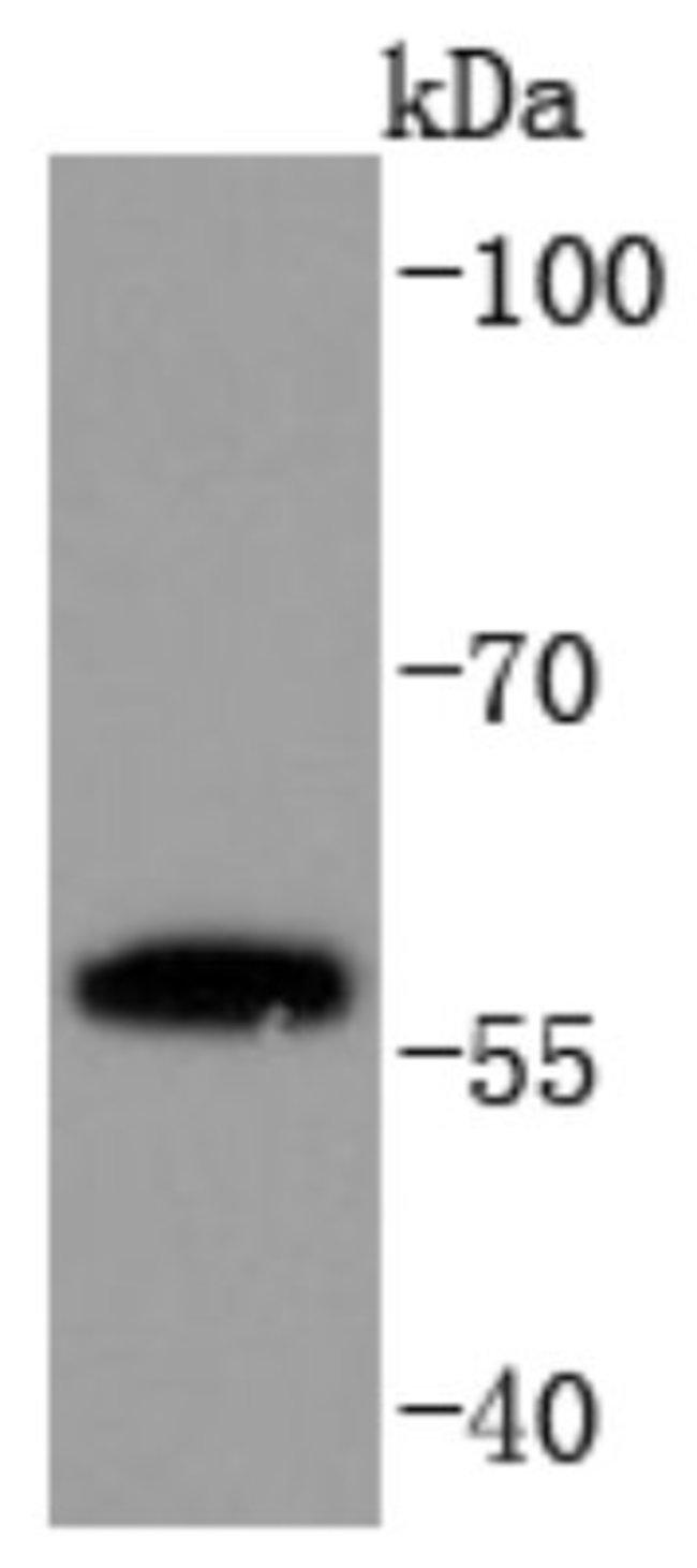 PPARgamma/NR1C3 Rabbit anti-Human, Clone: JF101-4, Novus Biologicals 100µL