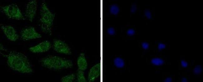PPP2CB Rabbit anti-Human, Mouse, Rat, Fish, Zebrafish, Clone: SN70-08,