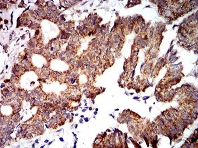 PTPN14/PTPD2 Mouse anti-Human, Clone: 2C12E3, Novus Biologicals 0.1 ml;