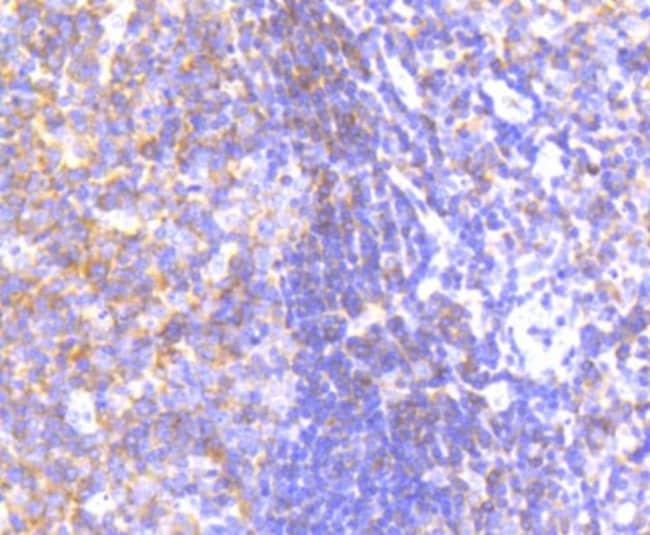 PYK2/FAK2 Rabbit anti-Human, Clone: SC06-15, Novus Biologicals 100µL