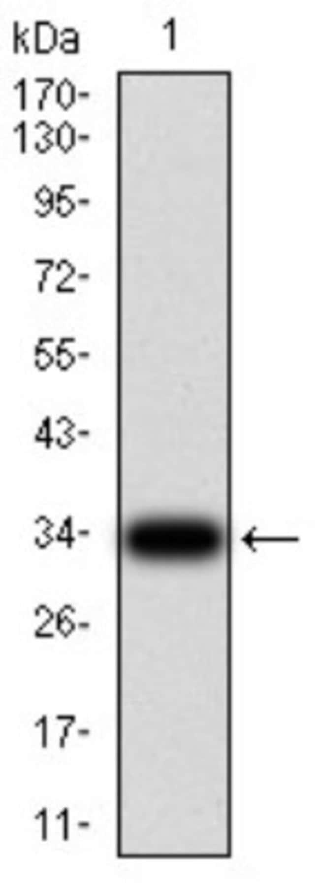Parvovirus  NS1 Mouse anti-Human, Virus, Clone: 8E6E10, Novus Biologicals